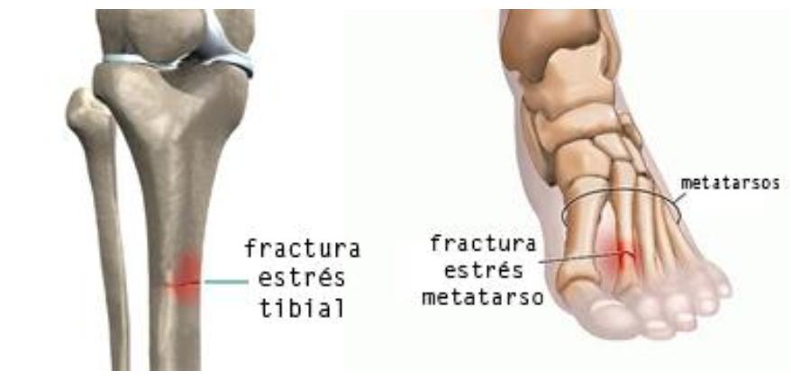 Resultado de imagen de fractura por stress